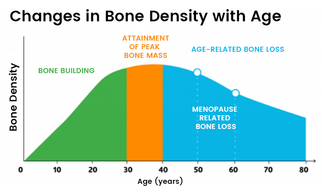 Changes in Bone Density with Age